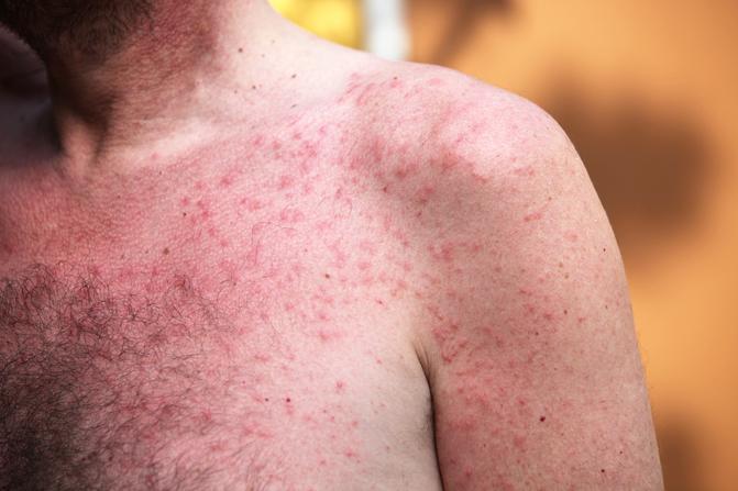 vörös foltok a testen égnek és viszketnek dermatitis után vörös foltok voltak, mint eltávolítani