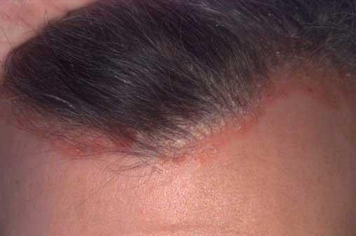 pikkelysömör kezelése a fejbrben