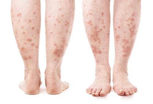 mit tegyünk, ha a lábát vörös foltok borítják)