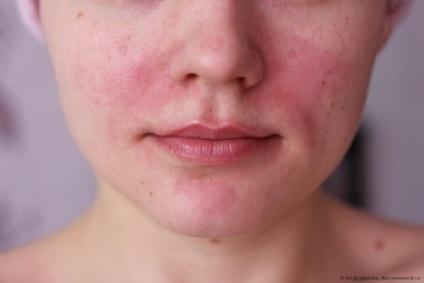 vörös foltok az arcon az alkoholtól)