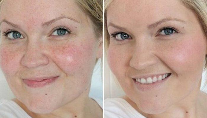 az arc megtisztítása után vörös foltok)