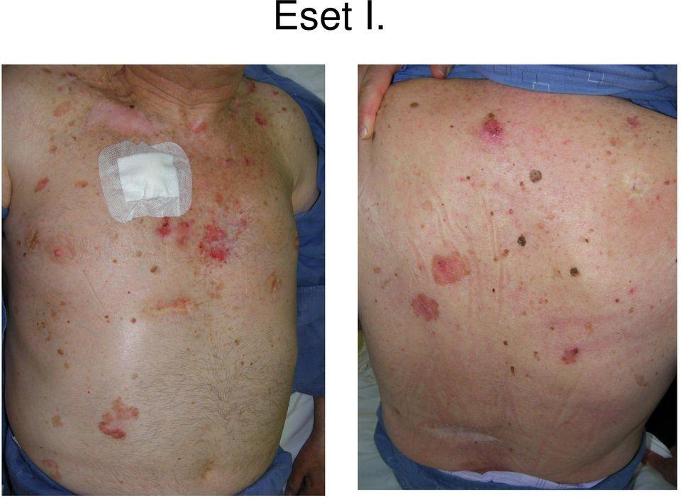 standard fekvőbeteg pikkelysömör kezelés)