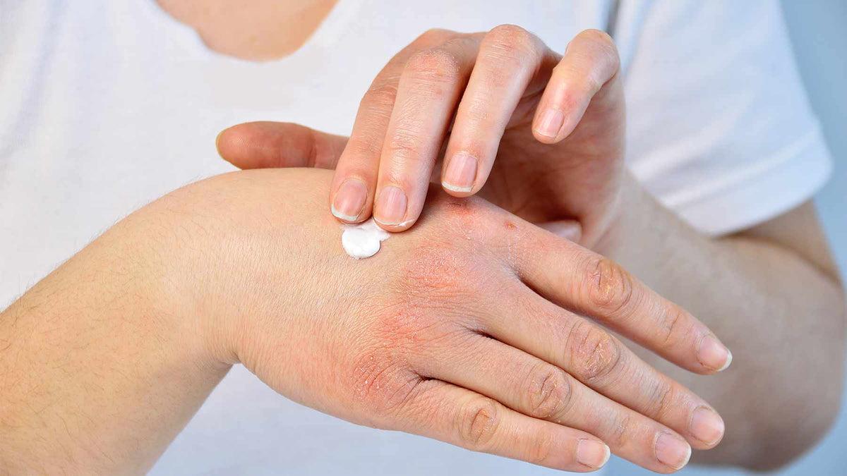 pikkelysömör és cukorbetegség kezelése kombinációban mit kell tenni az arcon vörös foltok