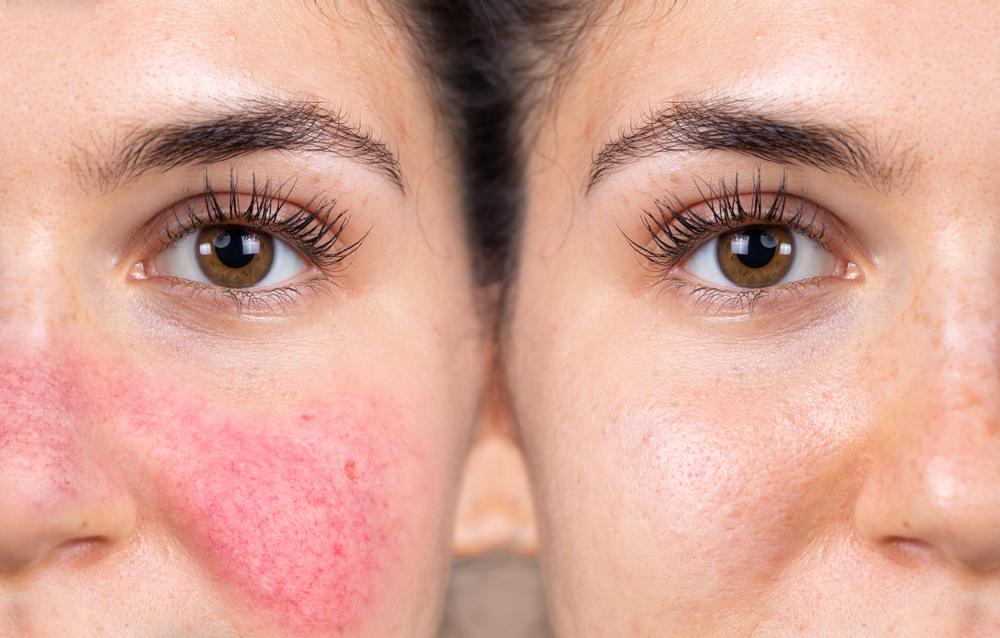 mit kell kezdeni a bőr vörös foltjaival)