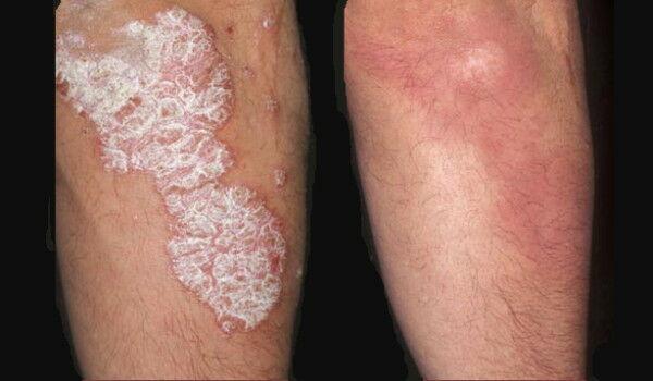 pikkelysömör hogyan kezeljük az exacerbációt vörös foltok a lábakon leválnak és viszketnek, mint kezelni