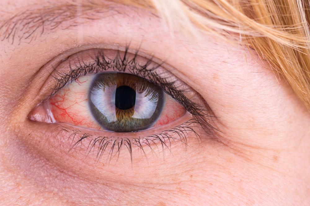 a felső szemhéjon vörös folt és hámlás található)