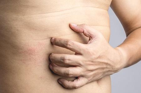 piros foltok pattantak a gyomorra pikkelysömör alternatív kezelések vélemények
