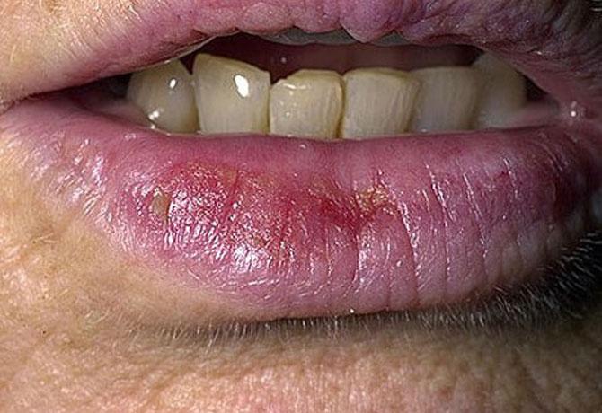 Piros folt az ajakban - Metasztázisok November - Vörös foltok az ajkakon hogyan kell kezelni