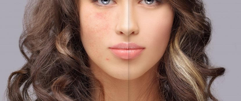 az arcon vörös korfoltok)
