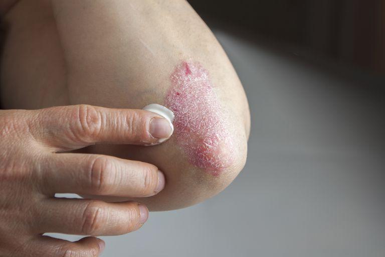 pikkelysömör kezelése a kezeken és a könyökön