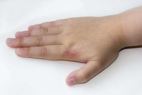 ekcma pikkelysömör dermatitis kezelése népi gyógymódokkal)