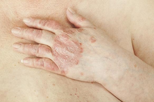 pikkelysömör hagyományos kezelsi mdjai a fejn hogyan lehet enyhíteni a pikkelysömör súlyosbodásait a fején