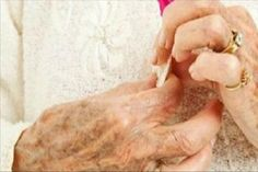 A pikkelysömör kezelése, gyógyítása – Natúrsziget