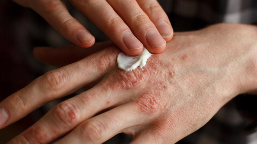 a pikkelysömör kenőcsökkel végzett gyógynövényes kezelés hatékony)