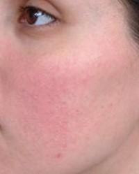 vörös foltok jelentek meg az arcon és a nyakon folt a bőrön egy piros felni fényképpel