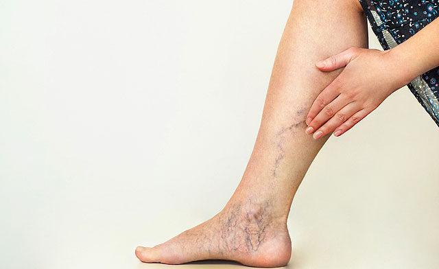 hogyan lehet vörös foltokat kenni a lábakon visszérrel)