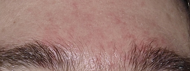 vörös foltokkal és hámló arcbőr)