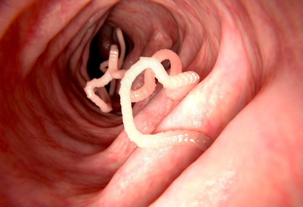 élő és holtvíz pikkelysömör kezelése reviews vörös foltok és viszketés a testen