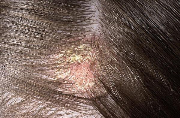 egy vörös folt a fejbőrön viszket a pikkelysömör kezelésének integrált megközelítése