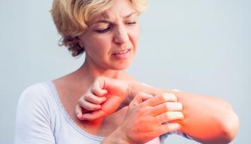 Bőr allergia vörös foltok a lábán viszkető kezelés fotó - Kezelés