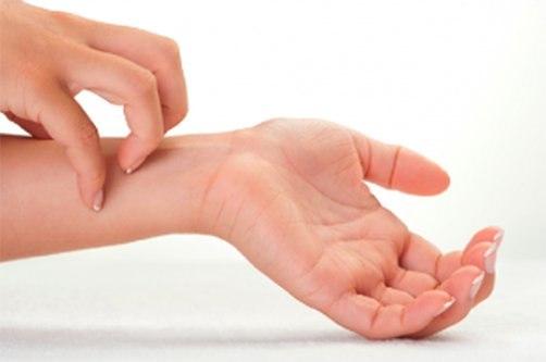 a kezek bőrét vörös foltok borítják)