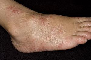 minden lábát az epilálásból származó vörös foltok borítják)