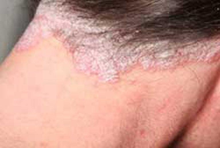 hogyan lehet eltávolítani a pikkelysömör fején lévő pikkelysmr vörös foltok a lábakon okok és fotók