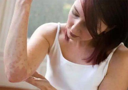 pikkelysömör súlyosbodik a kezelés során vörös folt viszket a testen