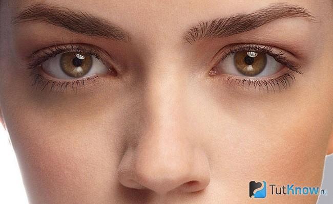 Fehér foltok okai a szem alatt és módszerek eltávolítására - Olaj November