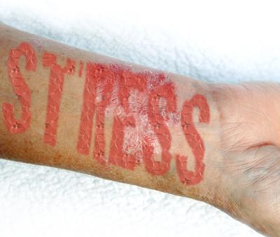 hogyan lehet pikkelysömör gyógyítani milyen injekciók vagy cseppentő vörös bőrfoltok a bőrön okozzák