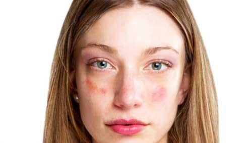 nagy vörös foltok egy felnőtt arcán)