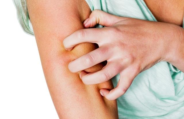 Vulgáris pikkelysömör kezelése alternatv mdszerekkel. Az Otthoni Gyógymódok Nagykönyve
