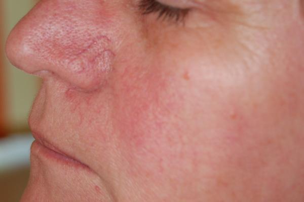 születéskor vörös folt az arcon