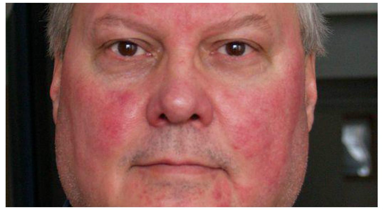 vörös pikkelyes foltok jelentek meg az arcfotón milyen kenőcsök alkalmazhatók a pikkelysömörhöz