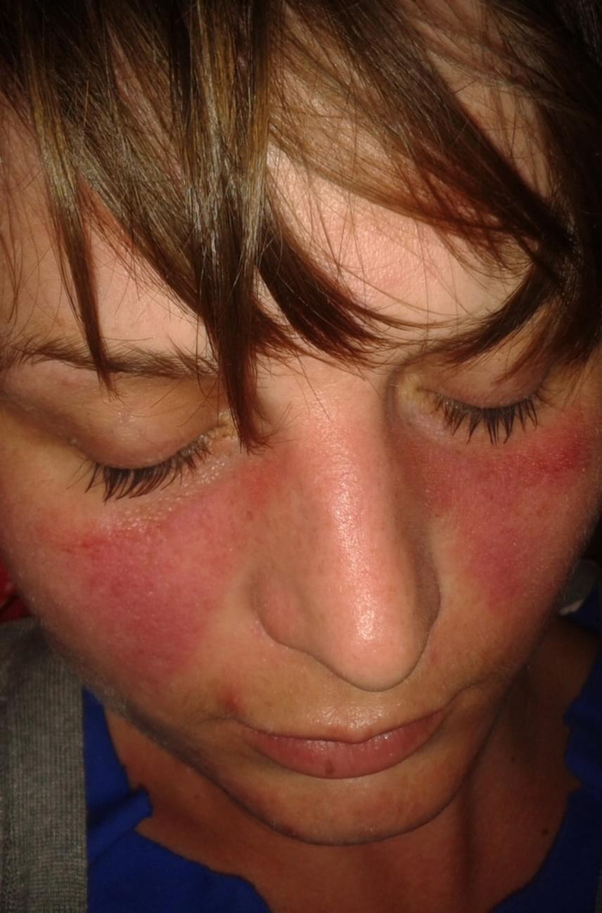 vörös és lila folt az arcon)